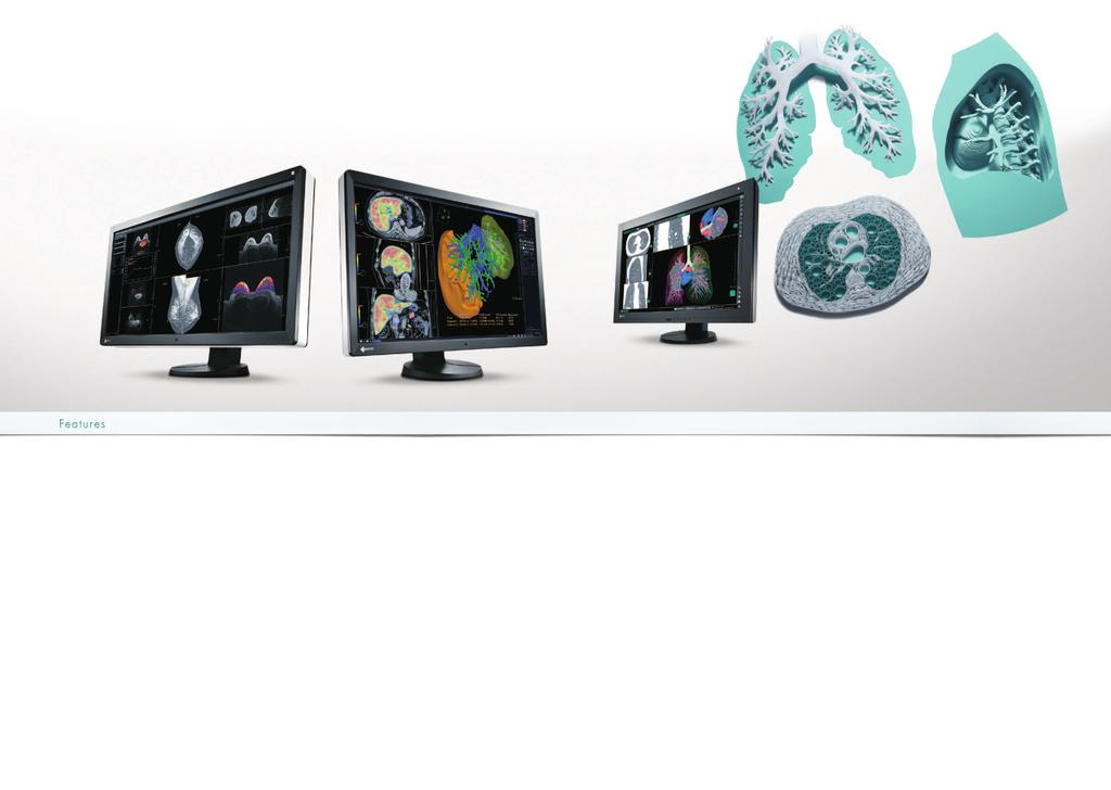 MultiModality Monitors These super highresolution diagnostic monitors can display a variety of medical images on one screen at the same time using