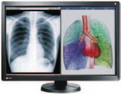 overall efficiency. Multimodality monitors are capable of displaying images to suit a number of modalities such as CR, DR, MRI, CT, and ultrasound.