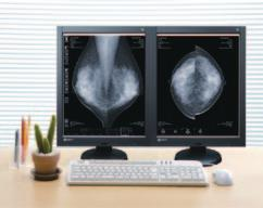 EIZO provides optimum diagnosis confidence with a 5 megapixel monitor specifically for digital mammography imaging.