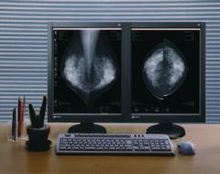 "3"") Monochrome LCD Monitor See how digital imaging is being used for mammography to improve the diagnostic workflow."