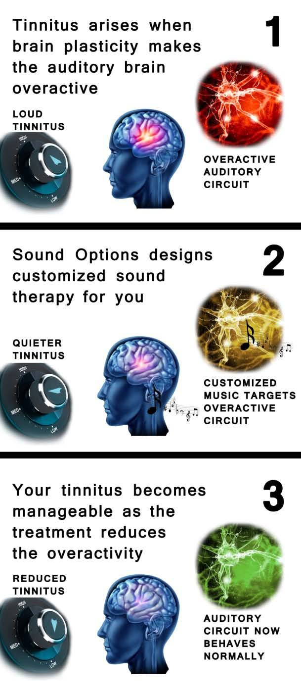 The software then predicts and creates a custom-built sound therapy that can minimize or undo these changes.